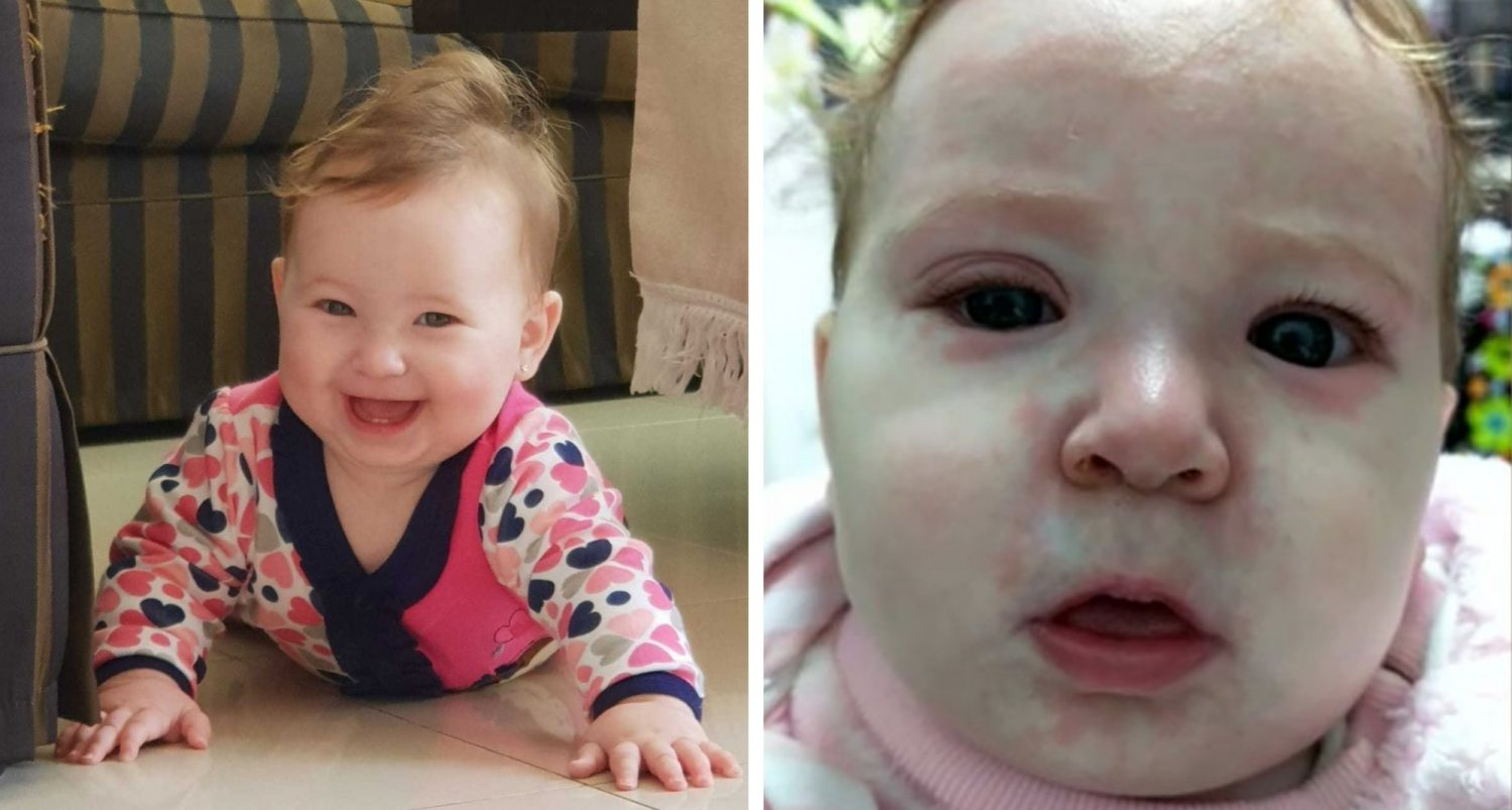 This Baby Got Measles Because Of Anti-vaxxers