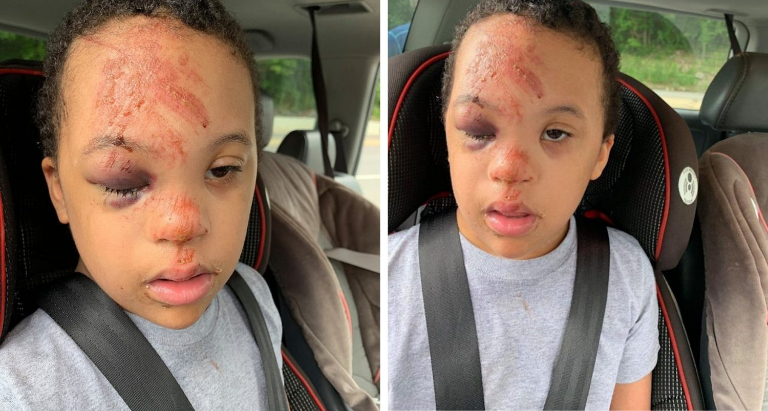 Mom Fights For Her Boy With Down Syndrome After School Stays Silent About His 'fall' On The Bus