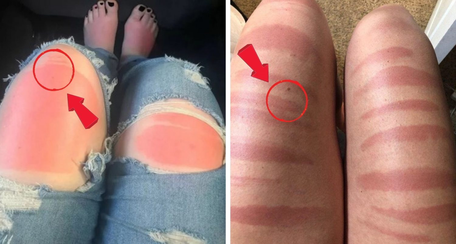 People Are Learning Wearing Ripped Jeans In The Sun Isn't A Good Idea