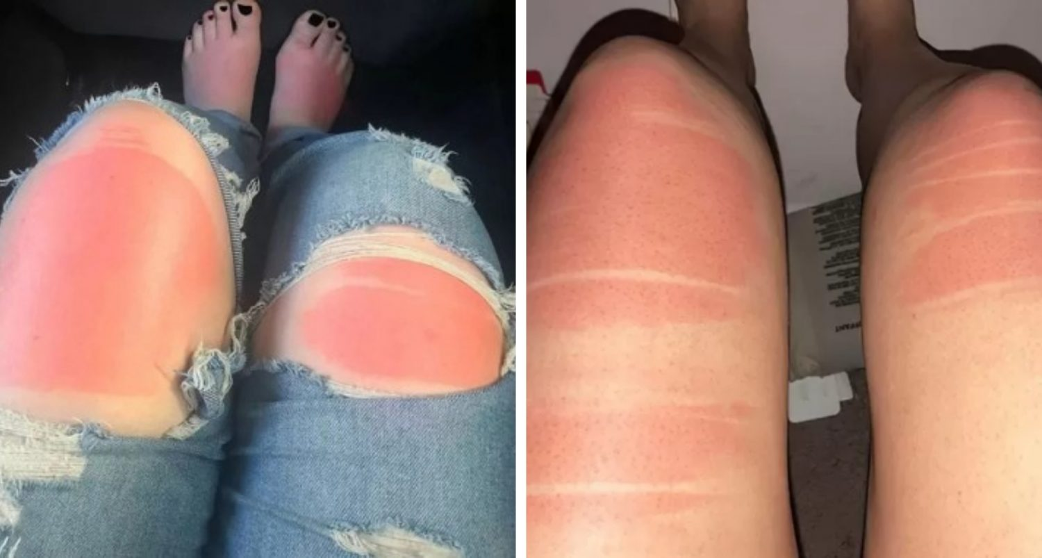 Why You Should Be Careful With Ripped Jeans