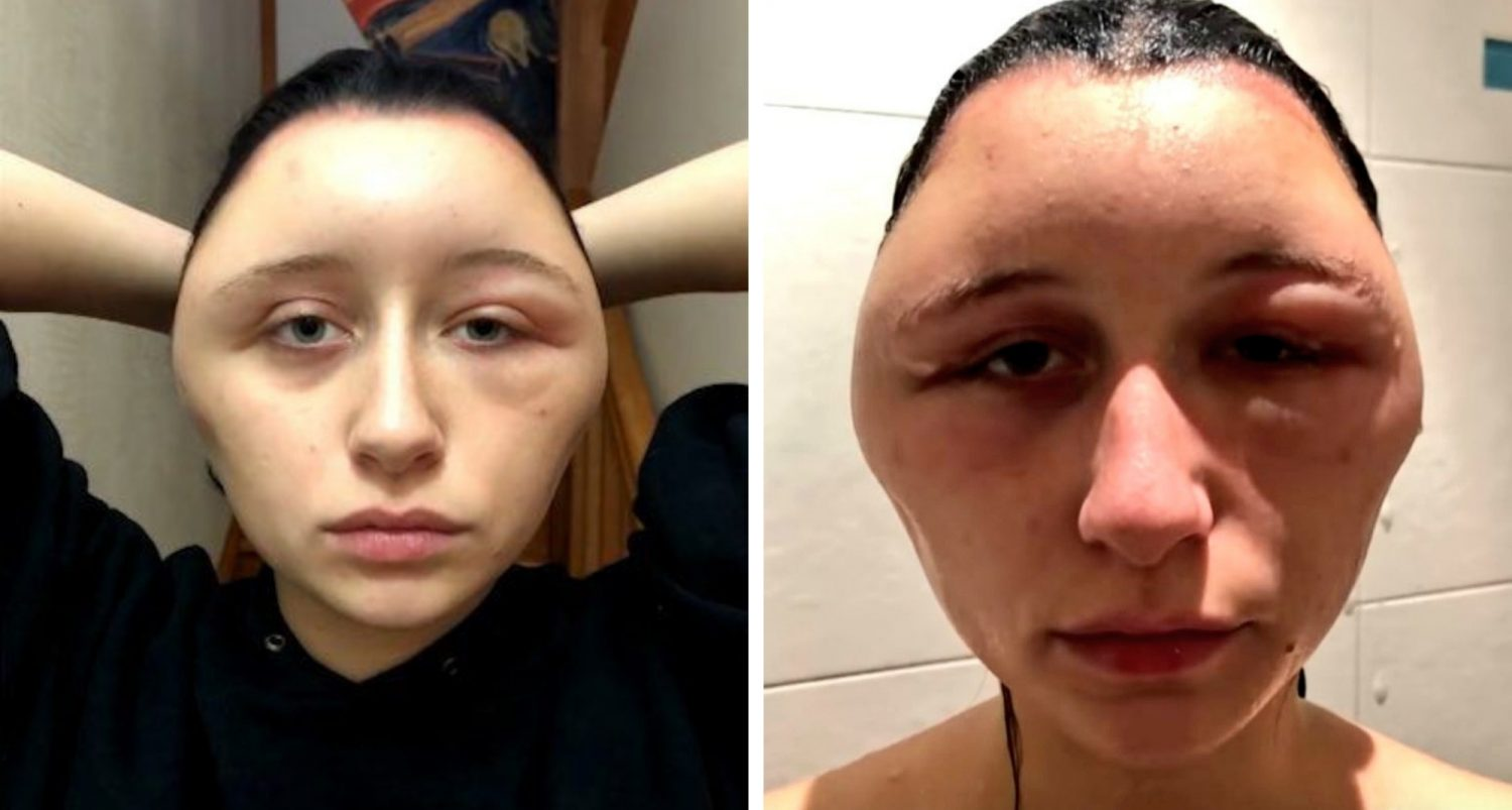 Woman's Head Nearly Doubles In Size After Allergic Reaction To Hair Dye