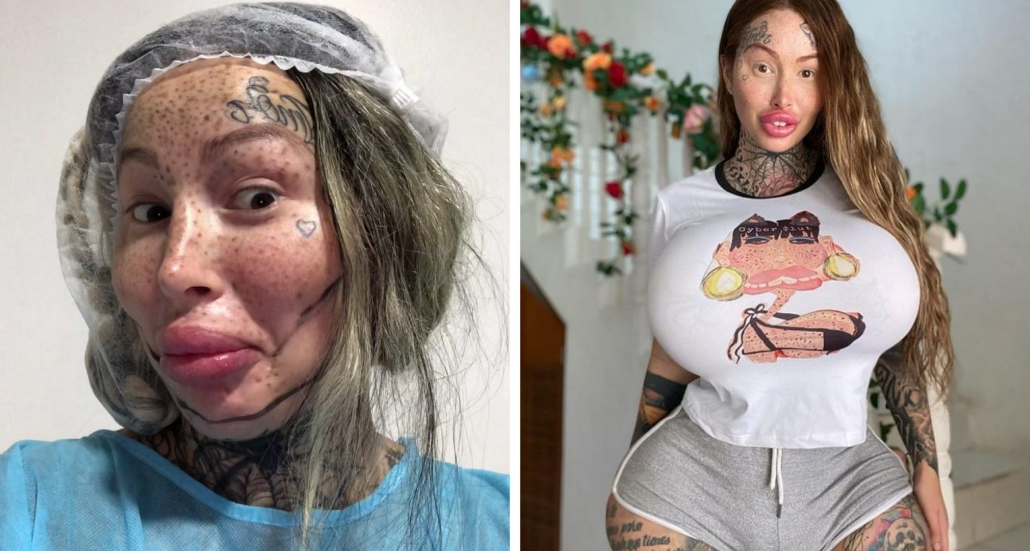 Model Who Had Vaginal Surgery To Make It Fattest In World Suffers Complications