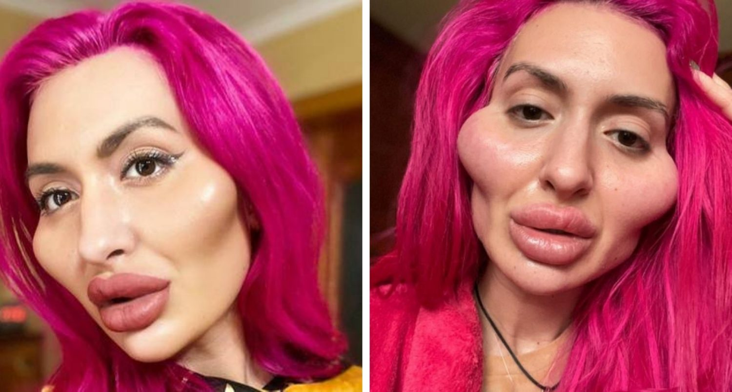Woman Who Is Obsessed With Cheek Fillers Says She Is Getting More Romantic Attention From Men Now