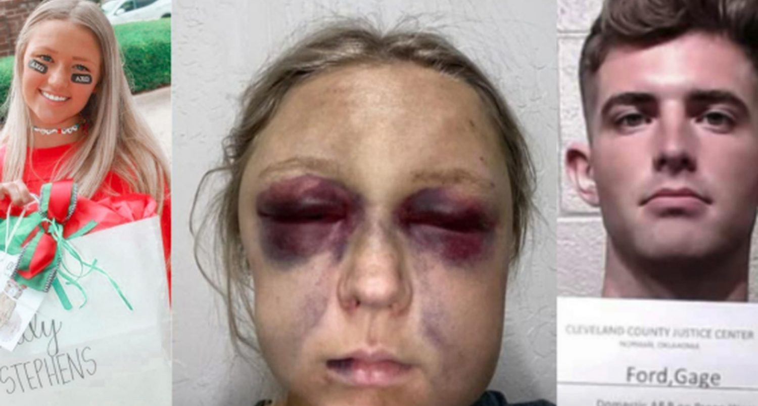 Monster Boyfriend Brutally Kicked And Beaten Pregnant Woman In A Bid To Kill Their Unborn Child