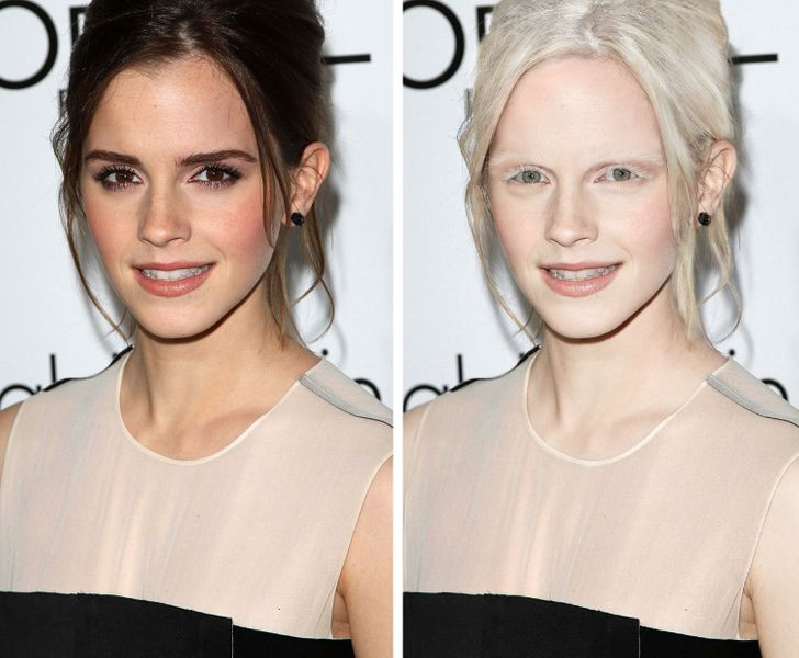 what 15 celebs would look like if they were albinos