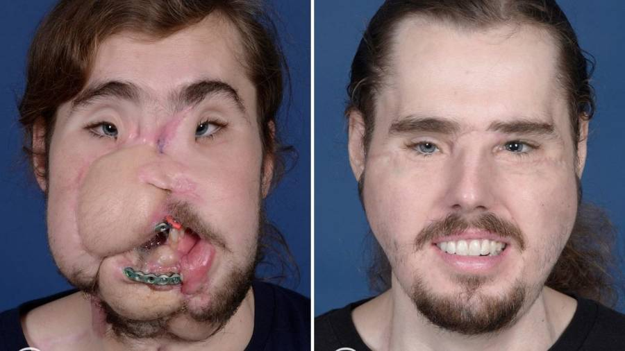 record-setting face transplant gives california man new lease on life