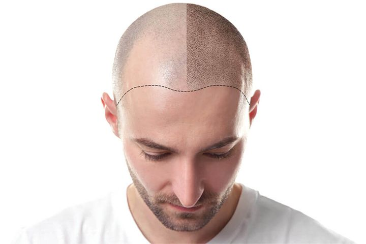 what side effects to expect after hair transplantation