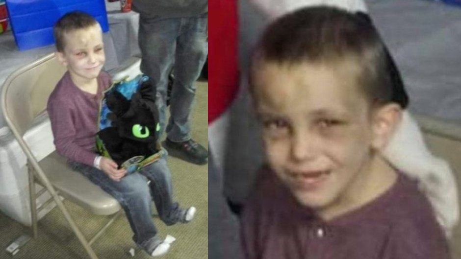 """5-year-old boy dies after brain bleed, suspects claim horrific injuries caused by """"self-harm"""""""