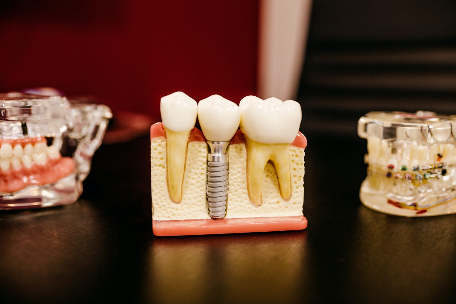 why dental implants are the latest treatment must-have