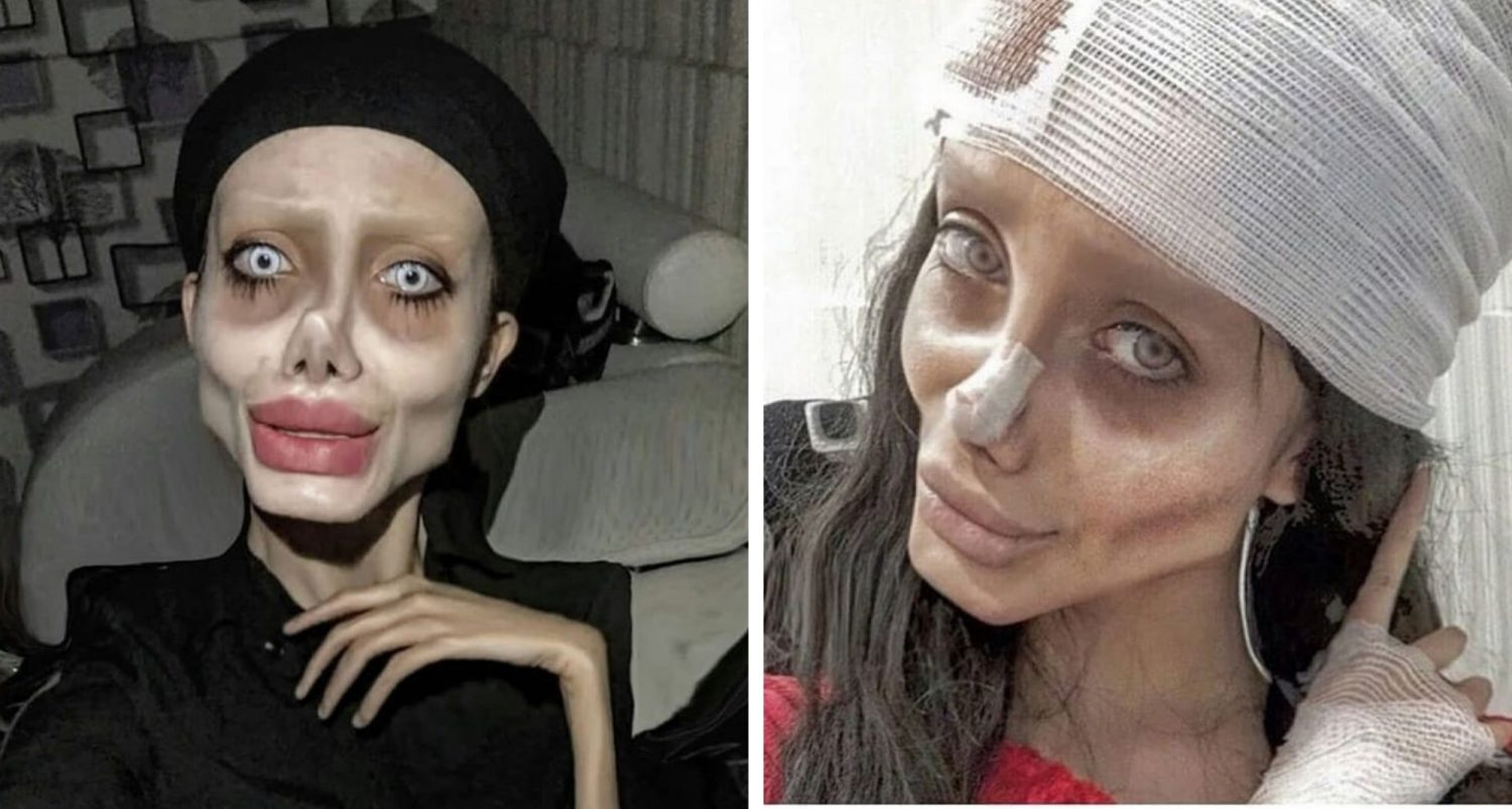"""Iranian """"zombie Angelina Jolie"""" Seen For The First Time In Years Without Photoshop Or Trickery"""