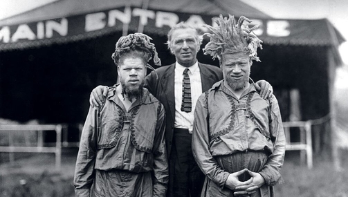 George And Willie Muse: Black Albino Brothers Were Kidnapped By The Circus And Displayed As Freaks