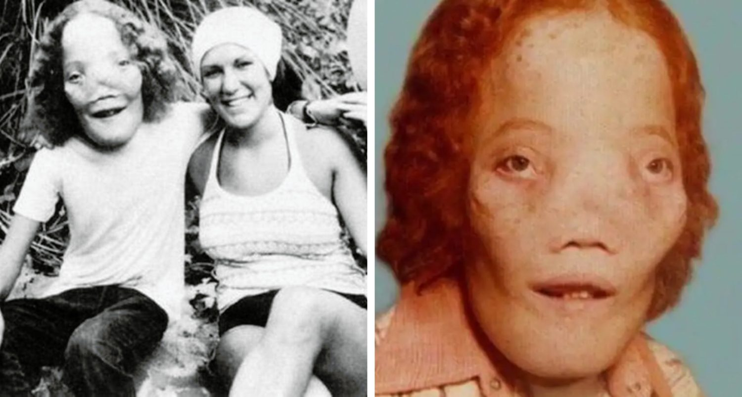 """Rocky Dennis: A Deformed Child That Looked Like A Lion And Inspired The Film """"mask"""""""