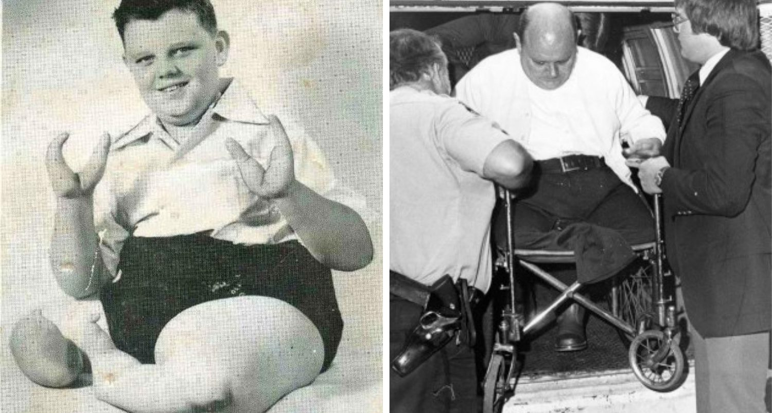 Chronicles Of The Lobster Boy: The Infamous Showman Who Turned From Murderer To Being Murdered